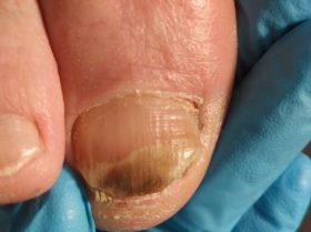Przed czyszczeniem paznokcia zmienionego chorobowo
