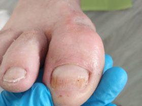 Paznokieć zmieniony chorobowo po oczyszczeniu przez podolog Monikę Cichoń