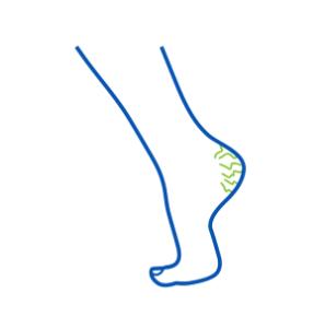 ikona pękające pięty na stopach i rozpadliny skórne