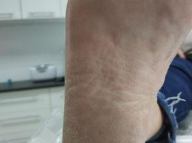Stan stopy przed wykonaniem podstawowego zabiegu podologicznego