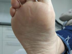 Wygląd stopy tuż po zakończeniu podstawowego zabiegu podologicznego