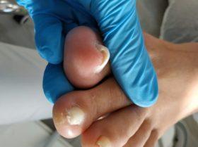 Ocena stanu wkręcających paznokci podczas pierwszej wizyty
