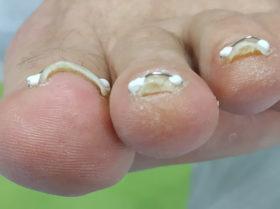 prostowanie wkręcających paznokci pod okiem doświadczonego podologa