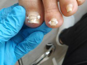 Pierwsze rezultaty leczenia wkręcających paznokci u podologa