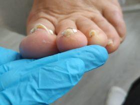 Wkręcające paznokcie z nałożonymi klamrami