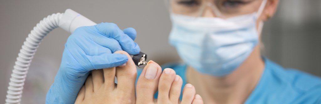 Oczyszczanie paznokcia zmienionego chorobowo